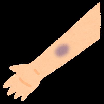 天然痘症状